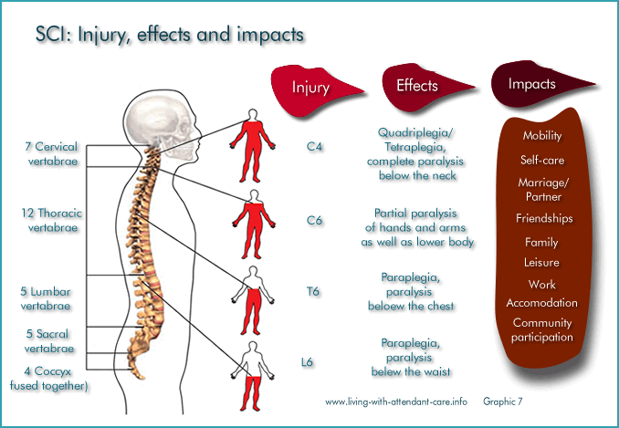 Living with attendant care spinal cord injury injury effects injury to impacts sciox Images